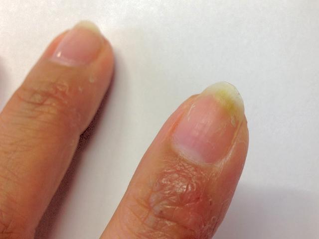 グリーンネイルの治療は皮膚科で!