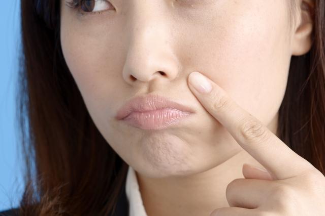 若いのにほうれい線が目立つ!頬のたるみの解消法